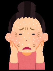 乾燥がひどいこの季節…お肌のケアをして金運アップ
